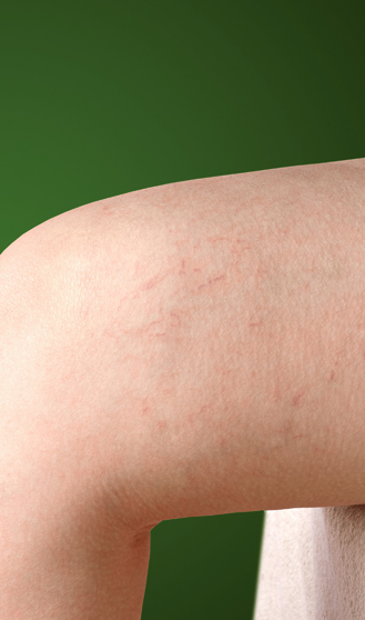 thread veins can be treated at the vein clinic with micro injection sclerotherapy